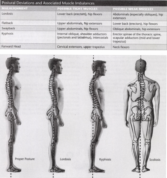 ISSA Unit 6 - Musculoskeletal deviations 1